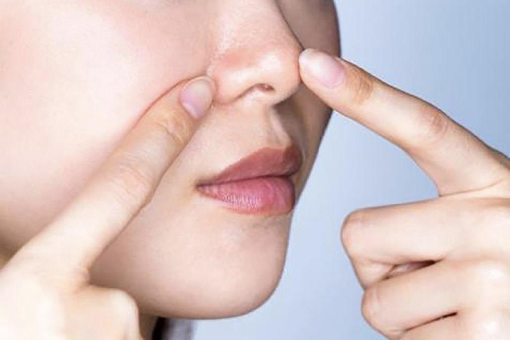 Cómo Acabar Con Los Poros Dilatados De La Cara Dream Alcalá
